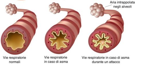 Effetti dell'asma sulle vie respiratorie