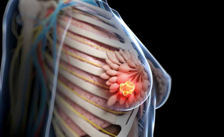 Chemioterapia per il tumore al seno, è davvero efficace?