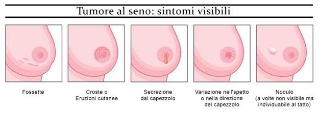 Alcuni sintomi del tumore al seno